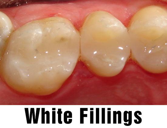 White Fillings Related Keywords - White Fillings Long Tail ...